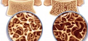 Витамин D – профилактика остеопороза