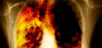 Здоровое питание сокращает риски развития рака лёгких