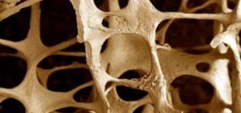 Маленький перерыв между беременностями повышает риск развития остеопороза