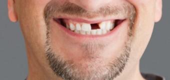 Курение способствует выпадению зубов