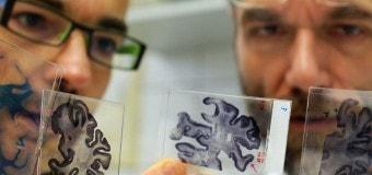 Причиной болезни Альцгеймера может быть «мозговой жир»