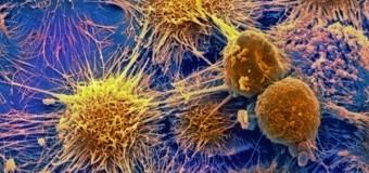 Ученые разработали имплантаты, притягивающие раковые клетки