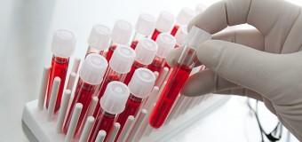 Диагностировать почечную недостаточность у гипертоников можно с помощью анализа крови