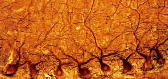 Ученые выяснили каким образом мозга управляют алкоголизмом и аутизмом