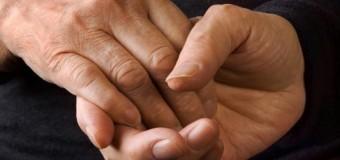 Резкая потеря веса у пожилых женщин указывает на риск развития болезни Альцгеймера